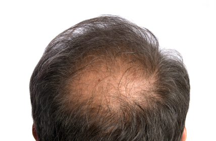 How Many Days Will It Take For Minoxidil To Work?
